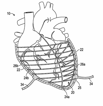 350x359 Cardiac Cycle Related Patent Applications