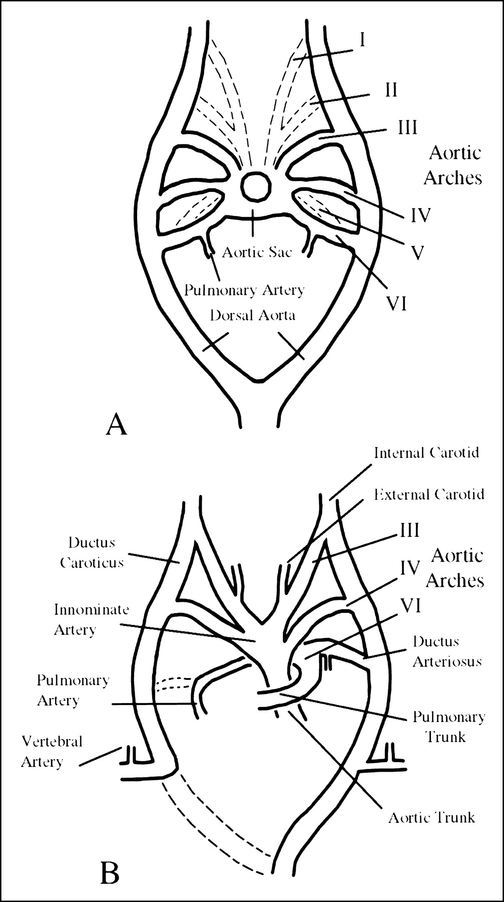 1007x1800 Congenital Absence Of The Internal Carotid Artery Case Reports