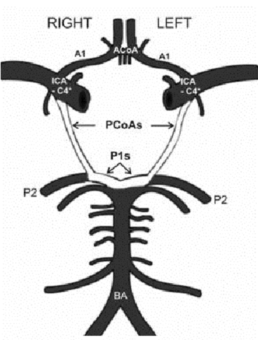 850x1120 Diagram Of Vessels Of The Carotid And Vertebrobasilar Systems