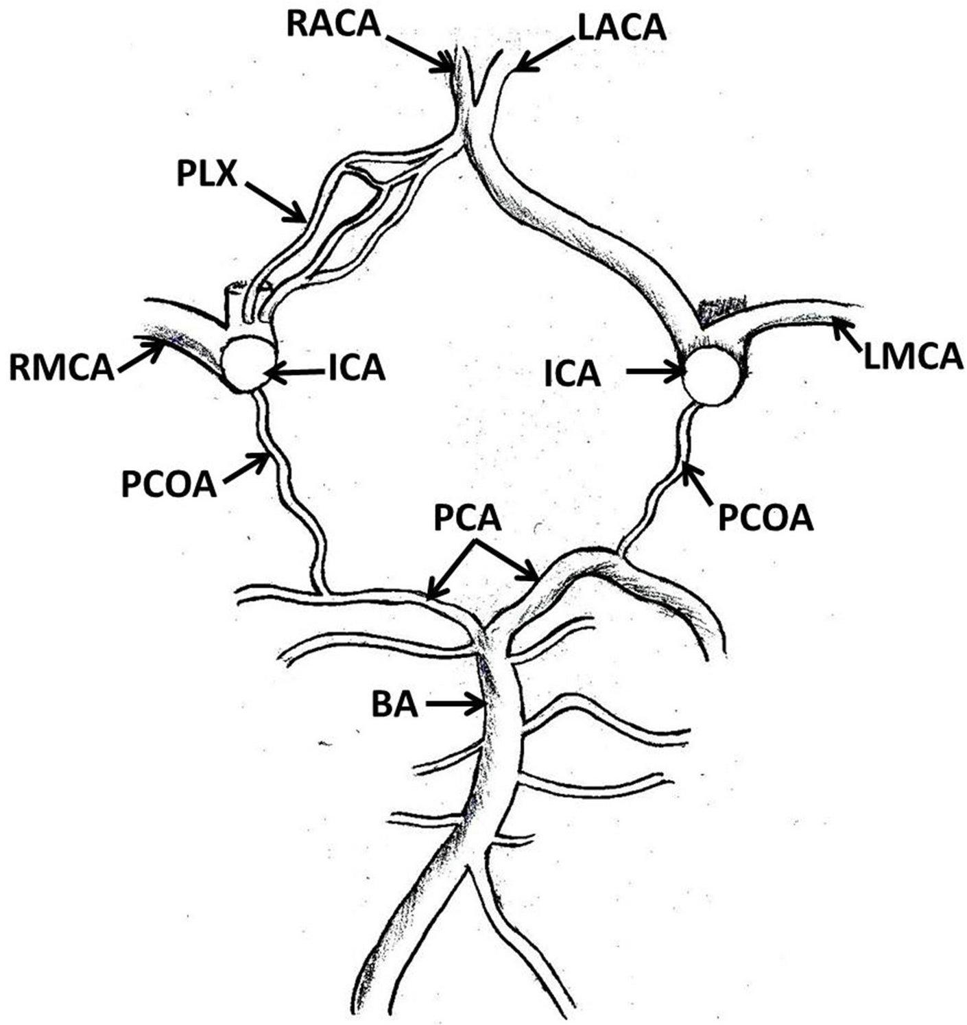 1410x1494 Hypoplastic Plexiform Right Anterior Cerebral Artery And Absence