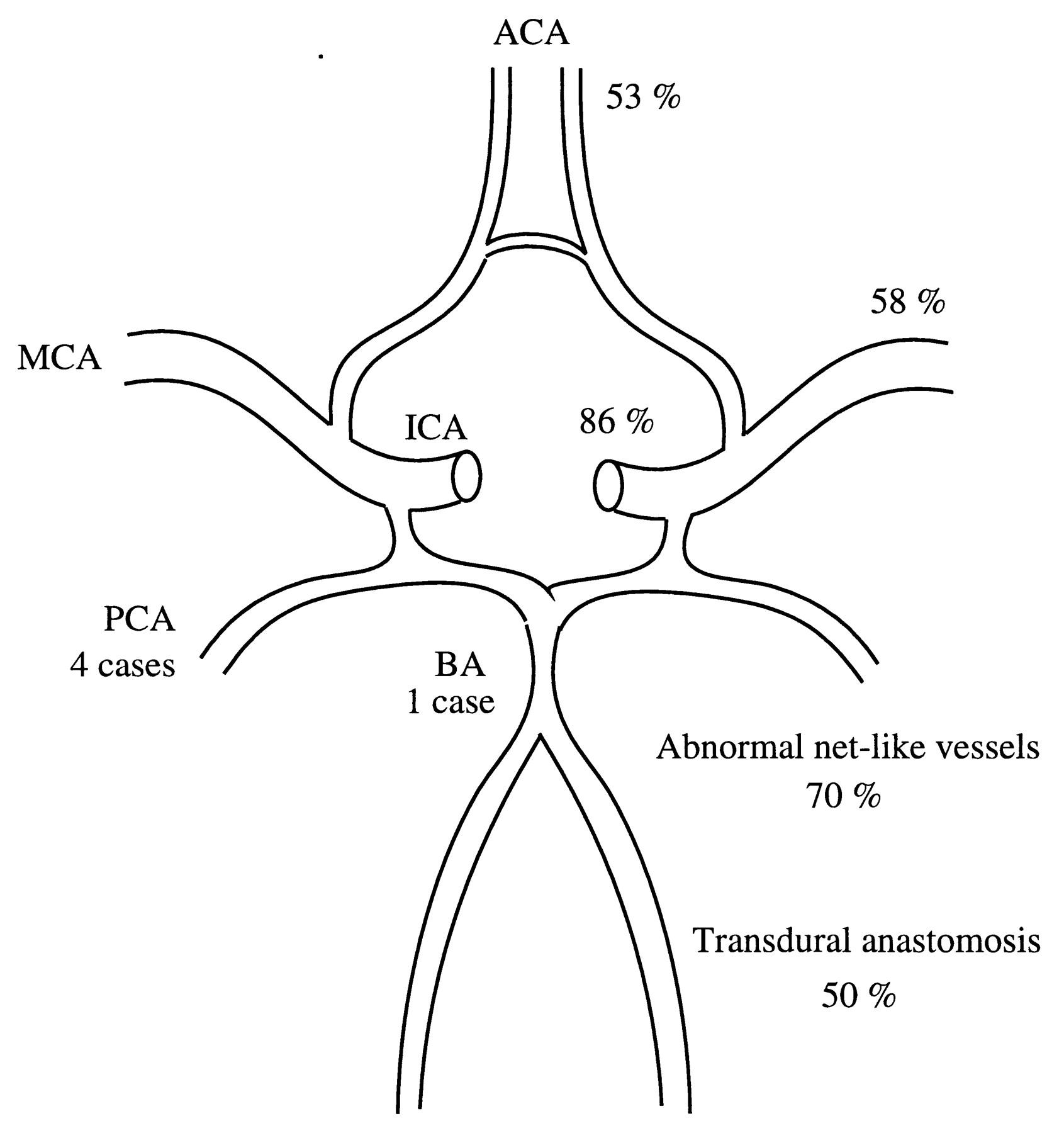 1691x1800 Progressive Cerebral Occlusive Disease After Radiation Therapy