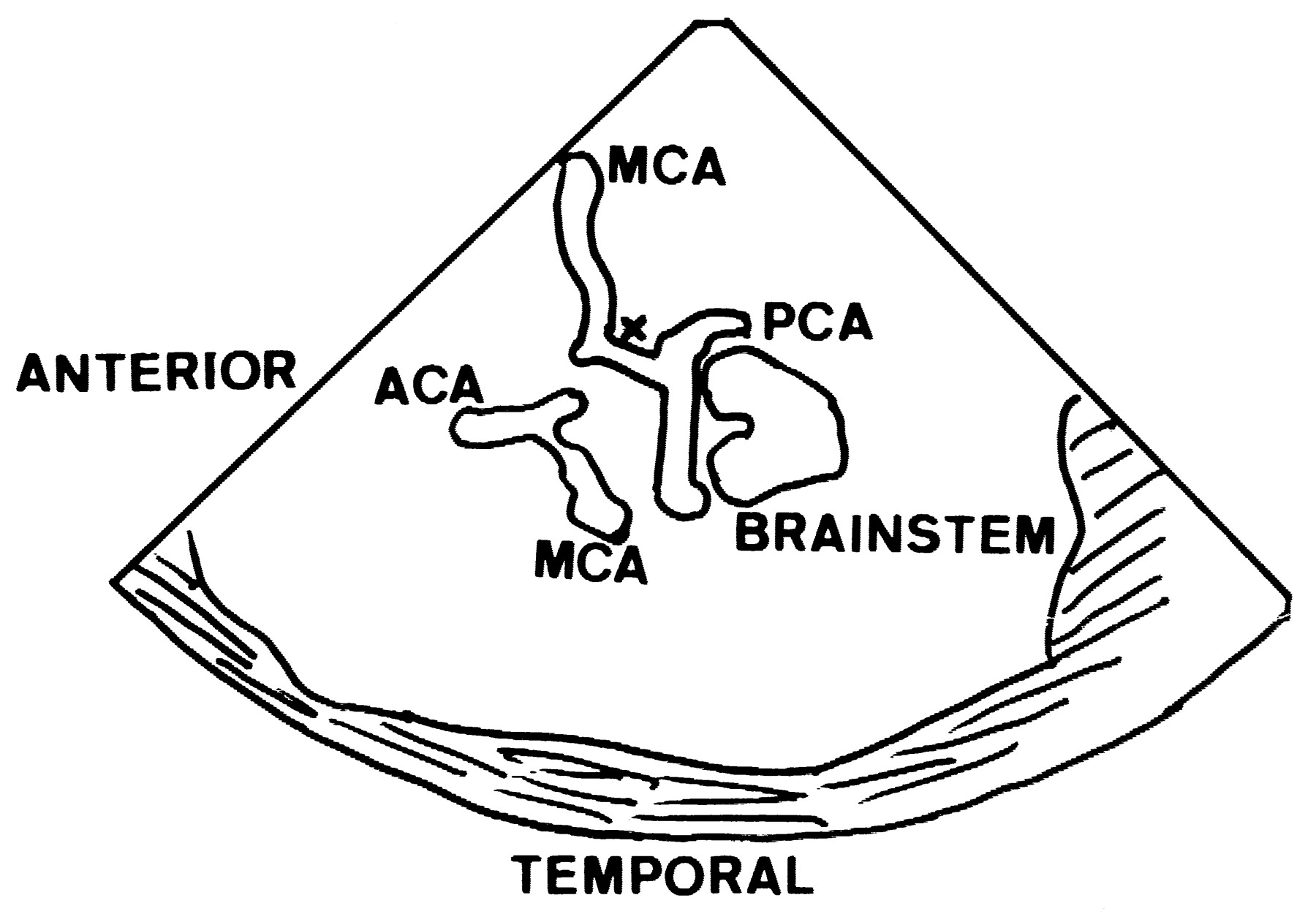 1800x1250 Assessment Of The Posterior Communicating Artery By Transcranial
