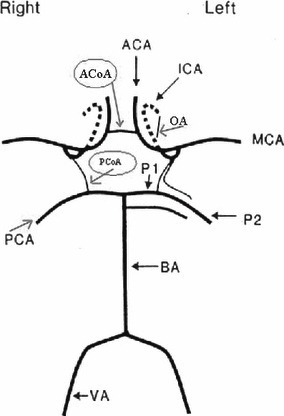 284x416 Circle Of Willis, Acoa, Anterior Communicating Artery Open I