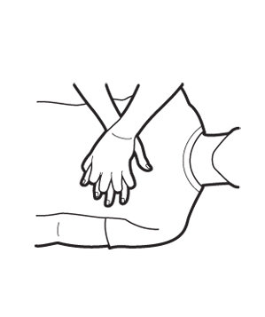 299x357 How To Perform Hands Only Cpr