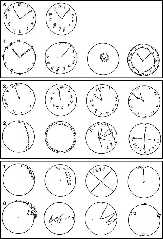 Dementia Clock Drawing
