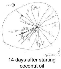 250x283 Best Alzheimer's Clock Ideas On House Afternoon