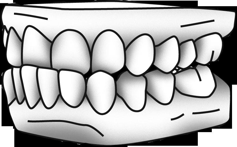 Denture Drawing