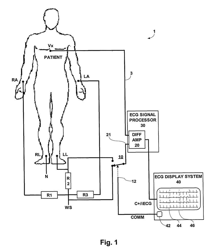 850x976 Einthoven Ecg ~ Wiring Diagram Components