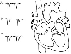 239x183 Illustration Of Iv Ecg. As The Guide Wire Advanced Near Sa Node