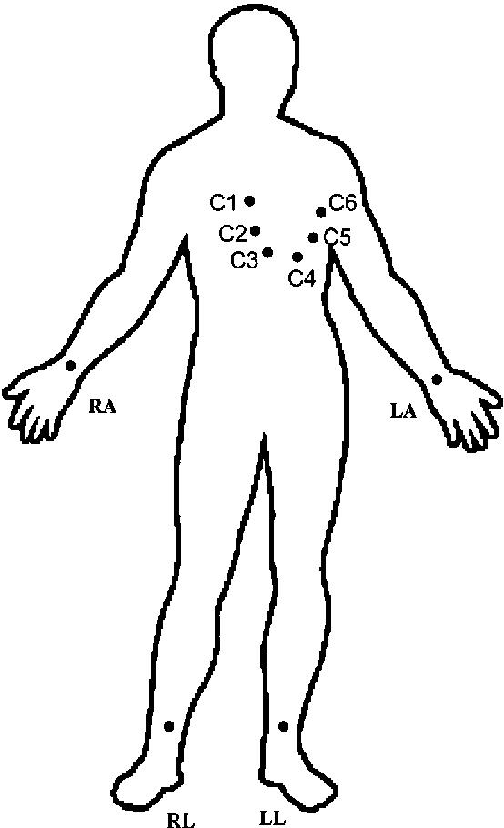 554x910 Points Of Ecg Signals