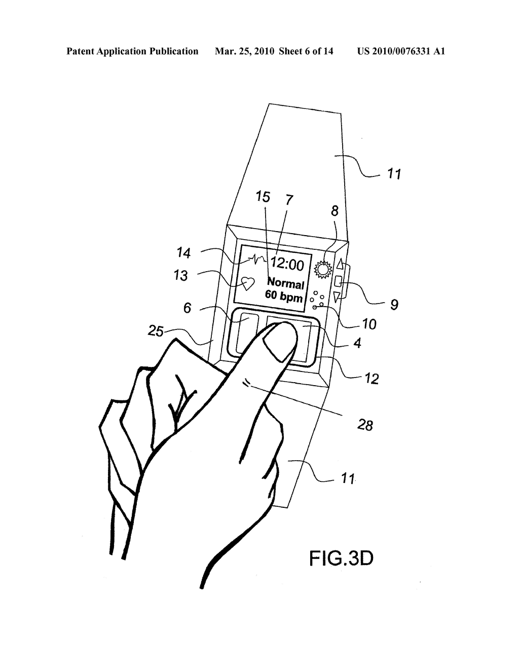 1024x1320 Device And Method For Measuring Three Lead Ecg In A Wristwatch