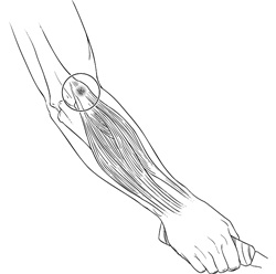 Elbow Drawing