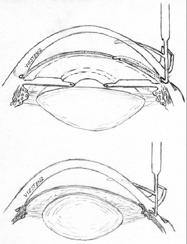 617x804 Principle Of Trabeculotomy. Upper Image Trabeculotomy Via