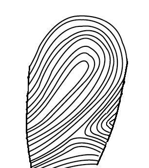 306x344 Dermatoglyphics Skin Ridge Patterns Types Of Fingerprints