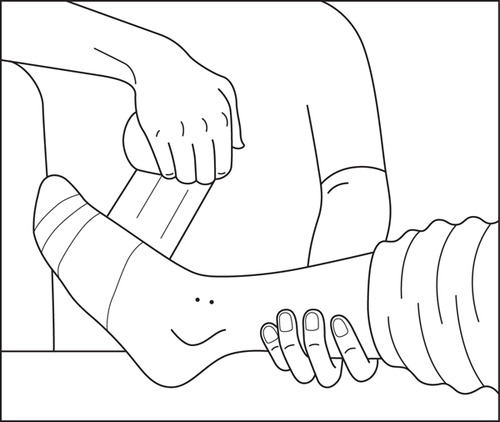the best free pressure drawing images download from 50 free  500x422 pressure immobilisation technique