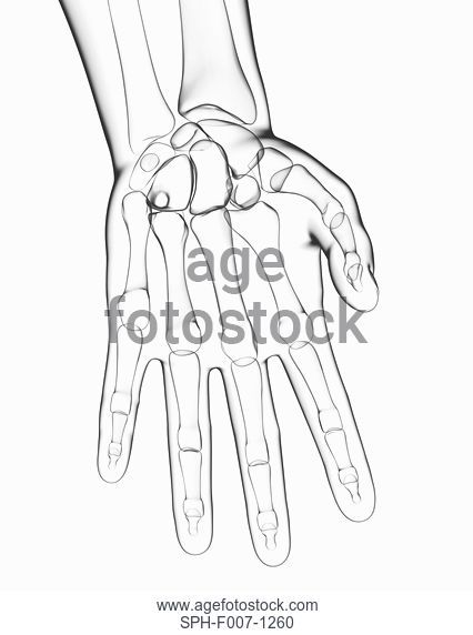 426x572 Illustration Of The Bones In The Right Hand, Palm View, Stock