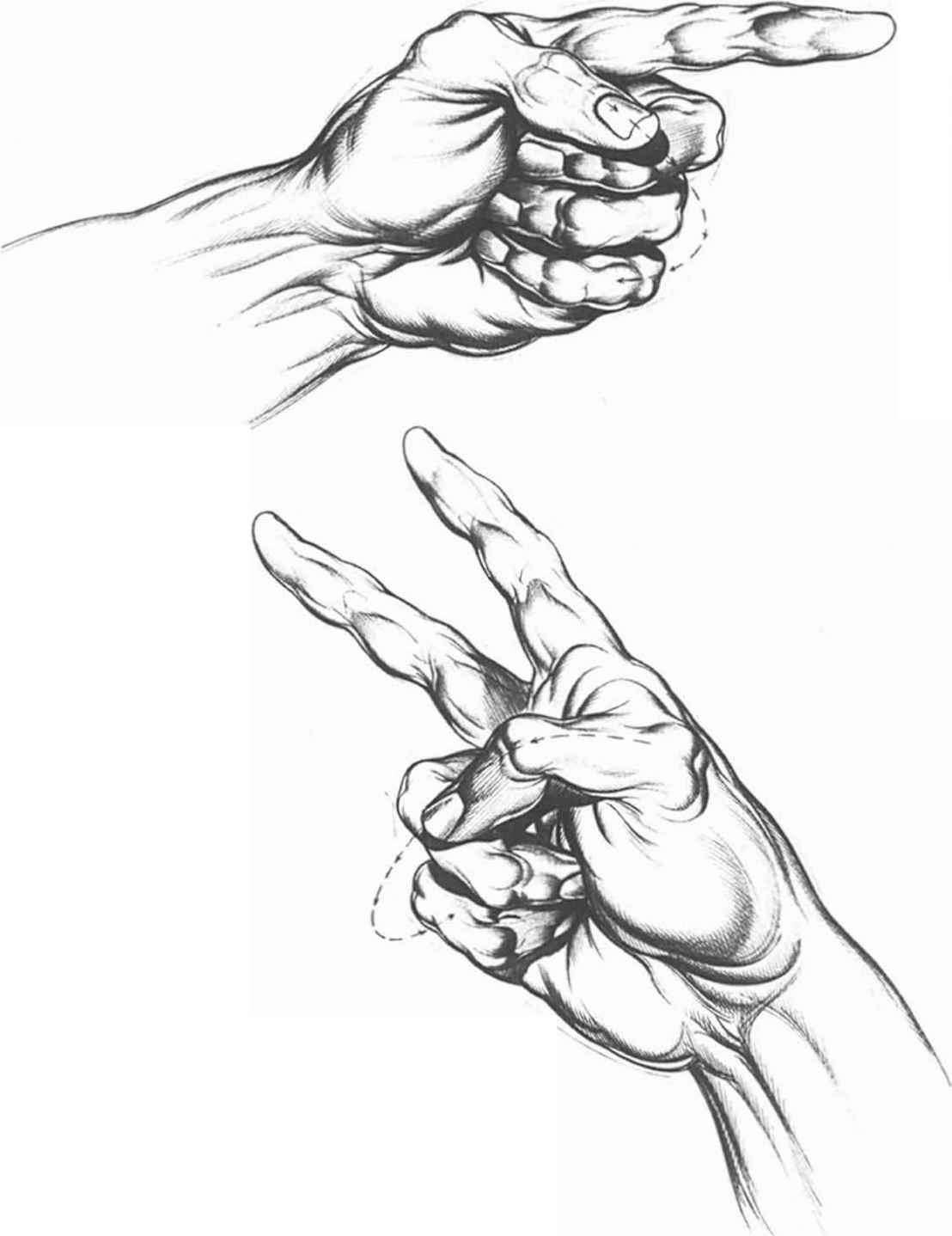 1108x1438 Kinger And Thumb Closure