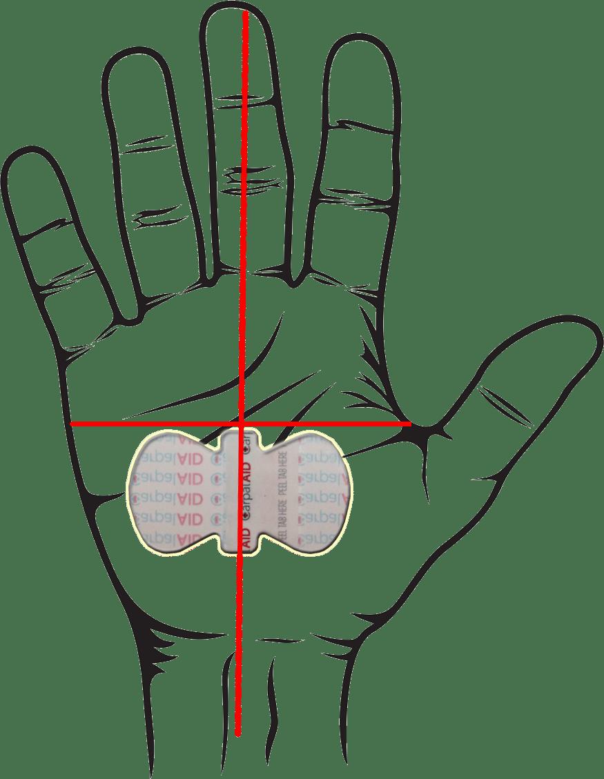 875x1129 Carpalaid Hand Position Final Carpalaid
