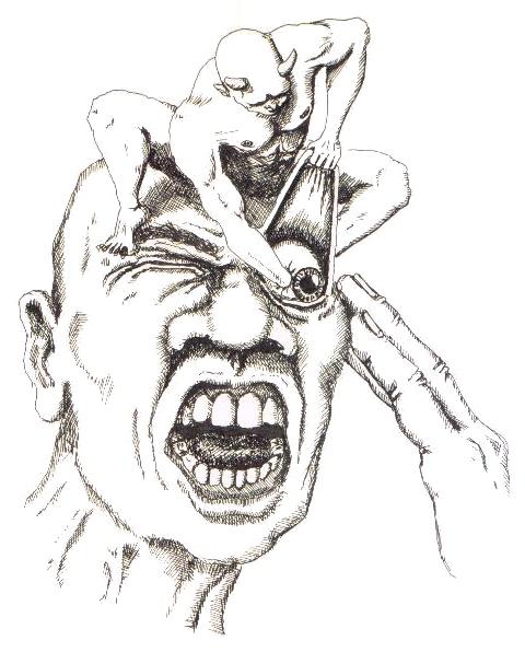 480x596 Filethe Cluster Headache.jpg