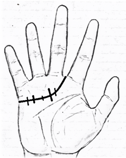 403x506 Heart Line Tells A Lot About Your Personality Palmistry