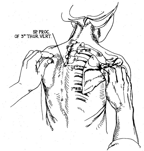 497x518 Bony Palpation Body Diseases