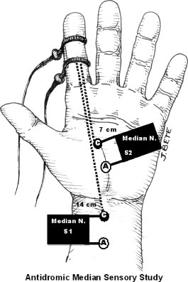 265x397 Antidromic Stimulation In The Palm With Recording