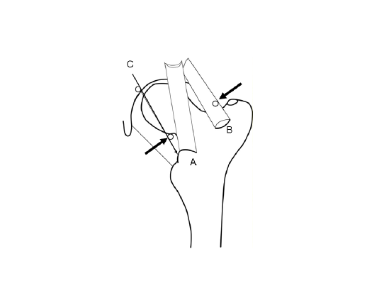 542x406 A. Line Drawing Of The Left Hip Anterior Ligaments. A)