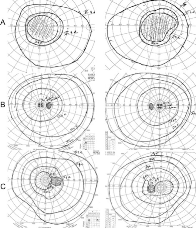 646x750 Visual Fields. The Right And Left Eye Visual Fields (Goldmann