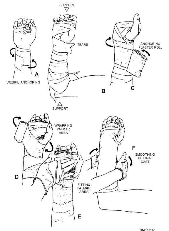 575x785 Short Leg Cast