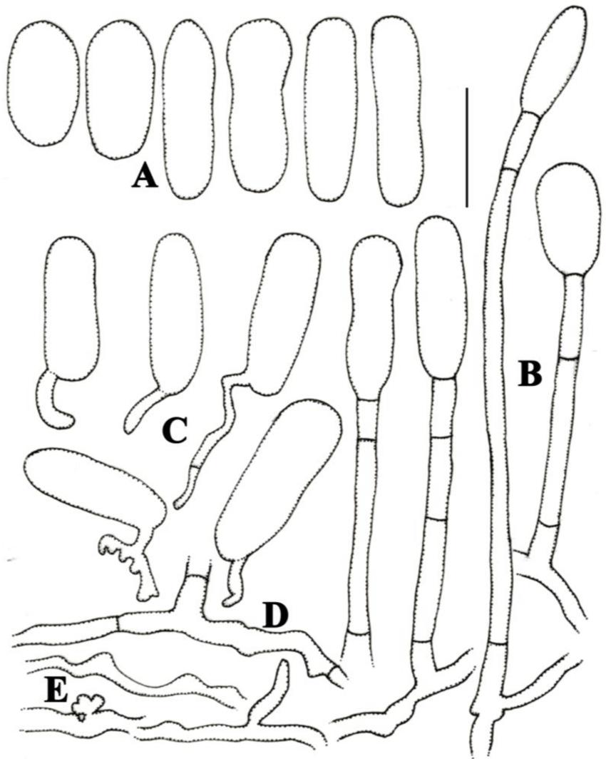 850x1064 Morphological Characteristics Of Ovulariopsis Anamorph Of P .