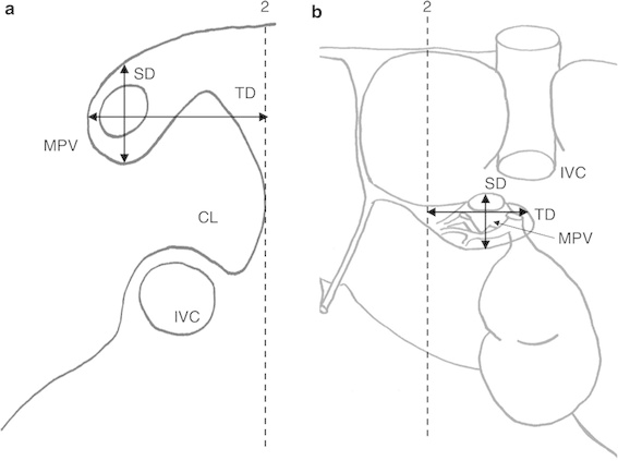 567x423 Schematic Drawing Of Liver, Showing Additional Landmarks
