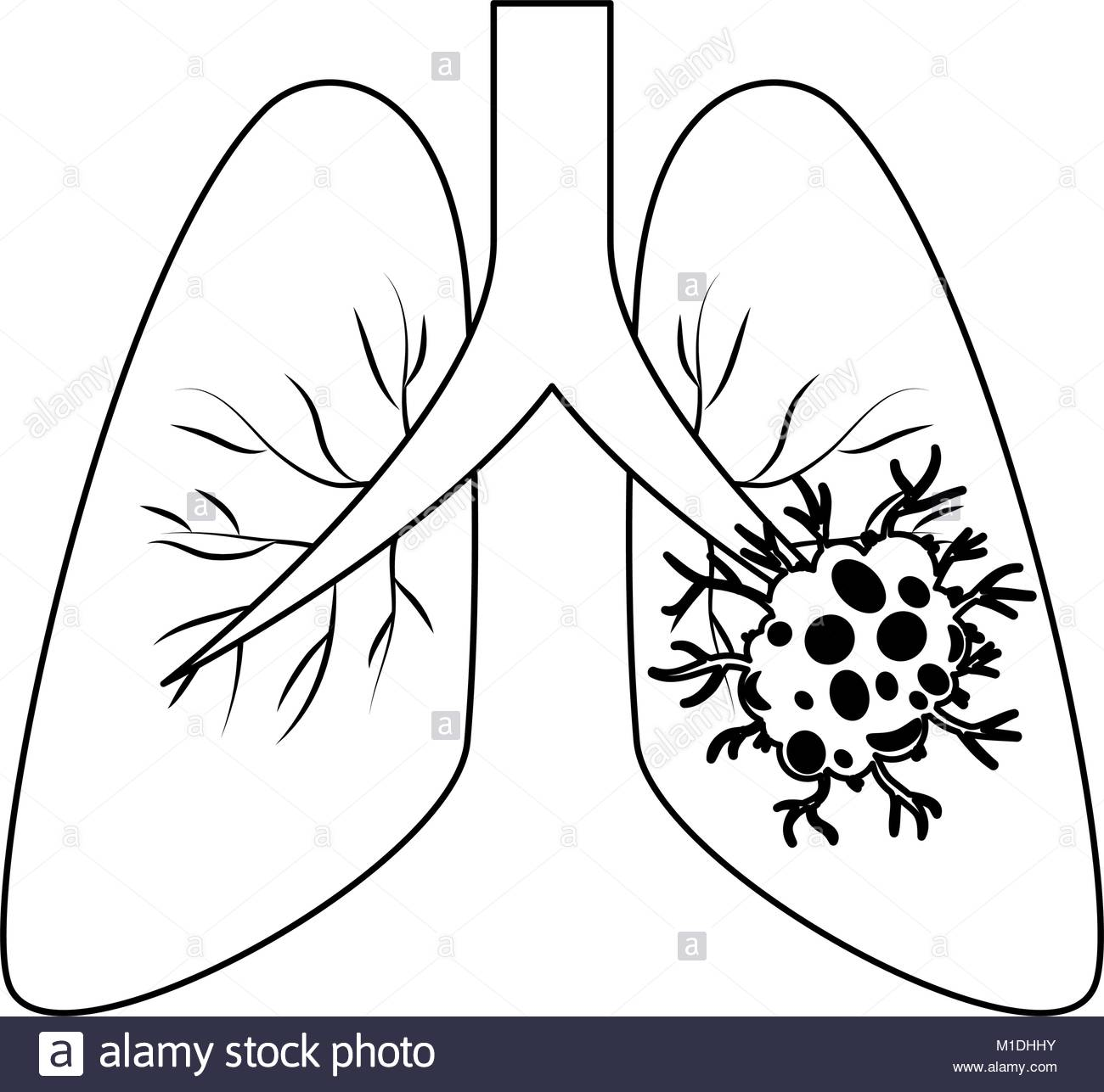1300x1287 Lung Cancer Isolated Icon Vector Illustration Design Stock Vector
