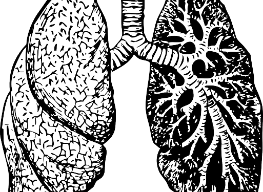 513x375 Lung Bio Engineering Clinical Trial May Benefit Cystic Fibrosis
