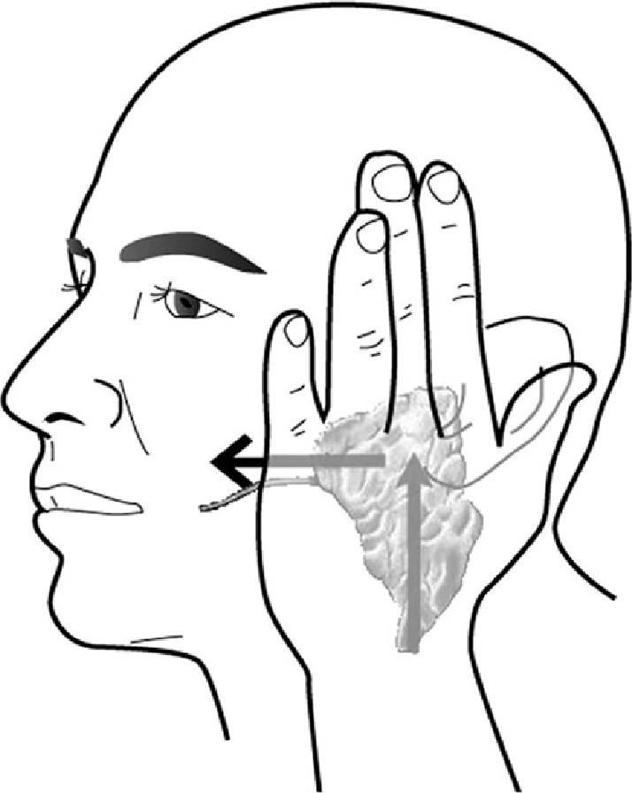 714x896 Demonstrating The Parotid Gland (Pg) Massage Method Used (3).