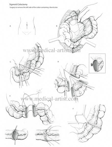457x600 Traditional Pen And Ink Medical Illustrations Gallery Hand Draw