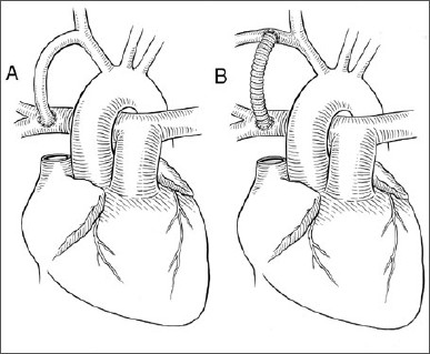 387x319 By Pioneering Heart Surgery, She Proved The Medical Establishment