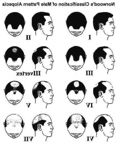 415x490 Simple Mens Hairstyles Through The Ages Trends Hairstyle Men 2018