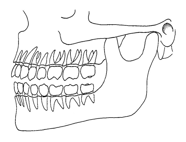 730x560 Position Of Teeth In Jaws