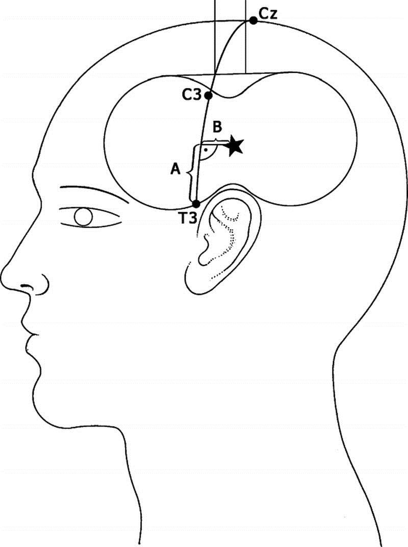 800x1072 Method For Positioning The Rtms Coil Over The Auditory Cortex