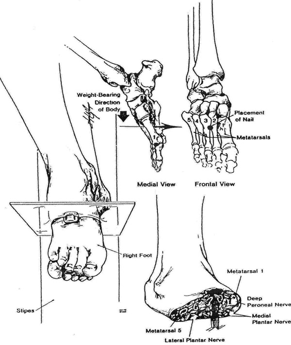 600x711 Detailed Drawing Of Important Image Nailed Feet Of Jesus On