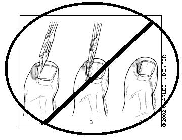 360x278 Ingrown Toenails Is Simple Wedge Resection Obsolete Pain