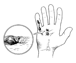 250x207 Dupuytren's Contracture Disease And Treatment Houston