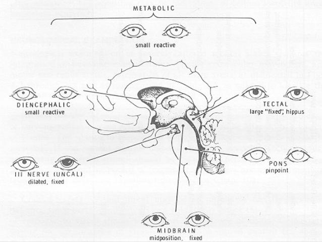 638x479 Neuro Exam Ppt