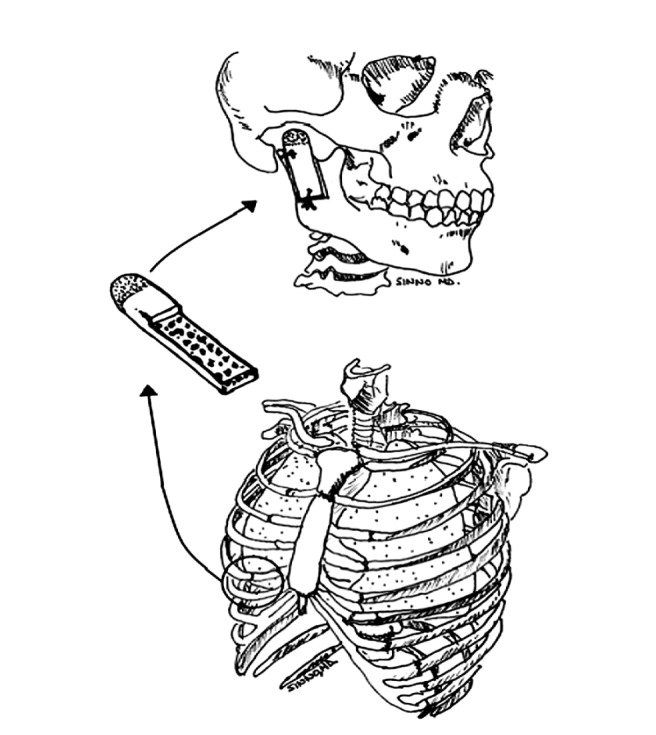 656x735 Drawing Of The Harvest Of The Costochondral Rib Graft