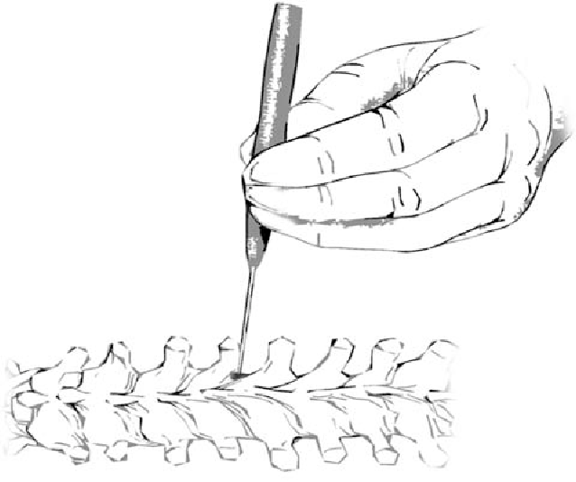 638x534 Ball Tip Technique For Thoracic Pedicle Screw Placement