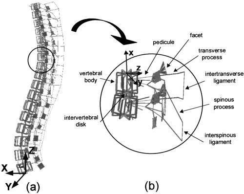 500x397 Simulation Of Progressive Deformities In Adolescent Idiopathic