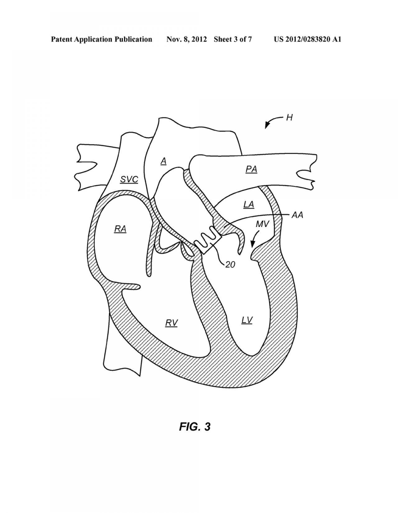 Simple Human Heart Drawing at GetDrawings | Free download