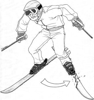 326x349 Imaging Of Snow Skiing And Snowboarding Injuries Radiology Key