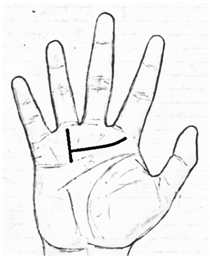 417x508 Line Of Fameluckwealth Sun Line(Apollo Line) In Palmistry (Part 2)
