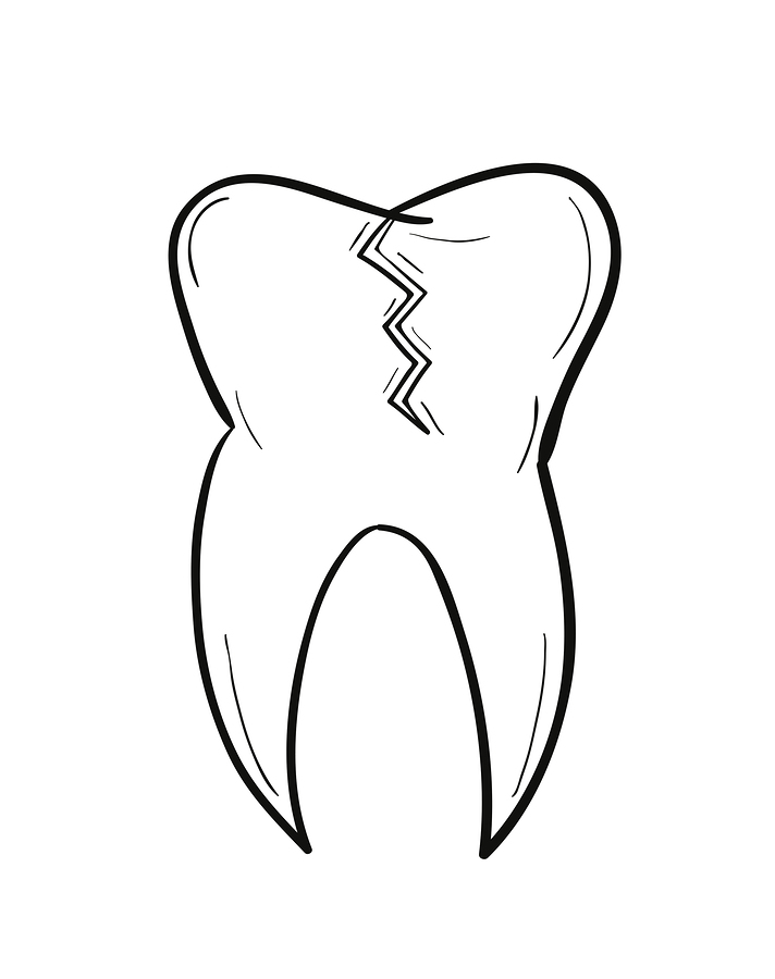 712x900 What Should I Do About My Cracked Tooth